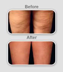 درمان و رفع سلولیت (تجمع چربی و فرو رفتگی پوست ران)