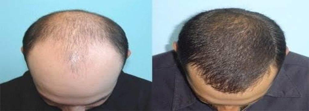 کاشت مو و روش های پیوند موی طبیعی سر