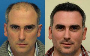 مقایسه کاشت مو و PRP