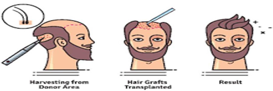 ۱۰ کاری که باید پیش از کاشت مو انجام بدهیم
