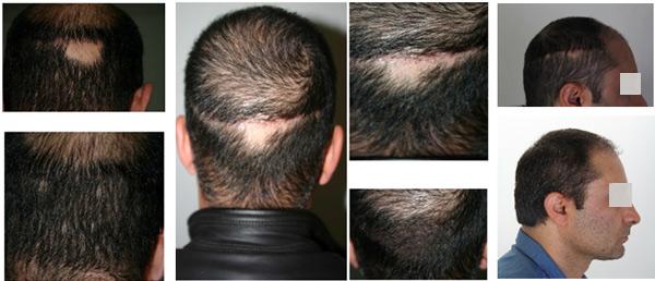 خط بخیه در کاشت مو