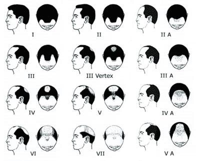 سوالاتی که از جراح کاشت مو پرسیده می شوند