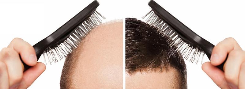 ۱۰ علت اصلی ریزش مو