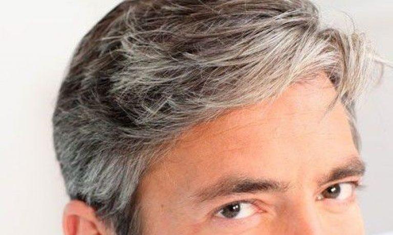 علت سفید شدن مو در جوانی چیست ؟