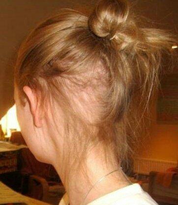 کاشت موی بیماران تریکوتیلومانیا بدون جراحی با روش HRP