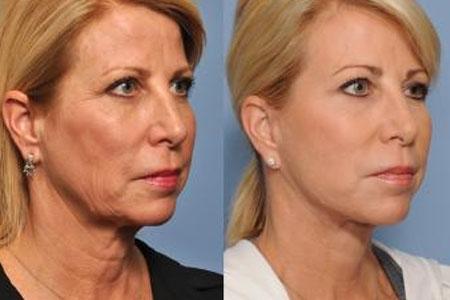 تزریق چربی در صورت و بدن
