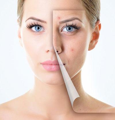 روشهای جوانسازی پوست صورت چه هستند؟