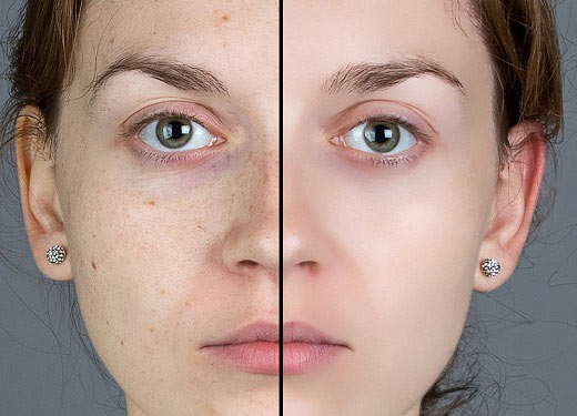 جوانسازی پوست با میکرو نیدلینگ