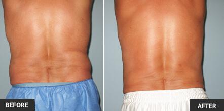 لیپوماتیک یا لیپوساکشن بدون درد