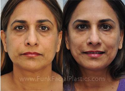 رفع و درمان پف زیر چشم