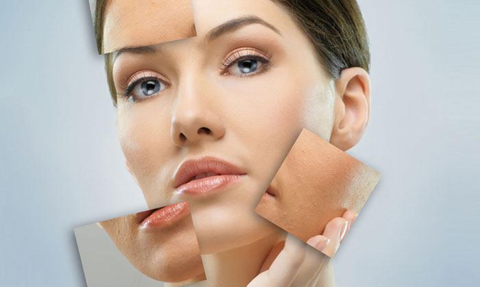 چربی پوست صورت و بدن