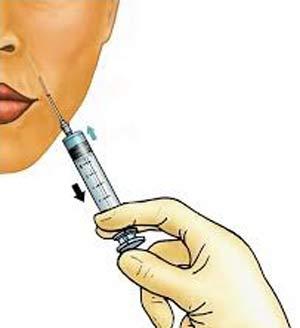 تزریق ژل و فیلر به صورت و بدن